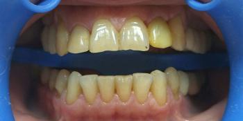 Преображение улыбки: 12 керамических виниров + 1 имплантат фото до лечения
