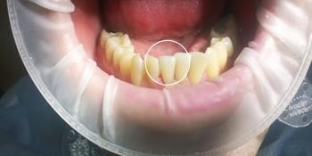 Восстановление зуба с помощью композитного материала фото после лечения