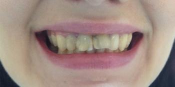 4 коронки из Е-max (прессованная керамика) фото до лечения