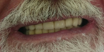 17 металлокерамических коронок и 2 бюгельных протеза с замковой фиксацией бредент фото после лечения