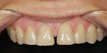 Закрытие диастемы (убрать промежуток между зубами) фото до лечения