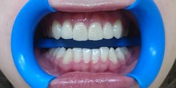 Эстетическая реабилитация фронтальных зубов с пластикой десневого края фото после лечения