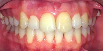 Исправление прикуса зубов с помощью брекетов Damon Clear фото после лечения