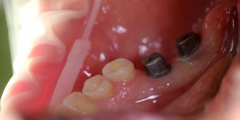 Восстановление зубного ряда с помощью имплантатов Ankylos и металлокерамических коронок фото до лечения