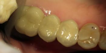 Восстановление зубного ряда с помощью двух имплантатов Dentium и трех металлокерамических коронок фото после лечения