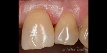 Реставрация зуба 21, дефект по 3 классу фото после лечения