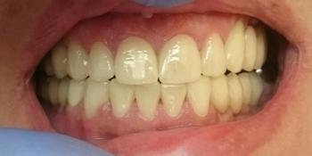 Протезирование на дентальные импланты, виниры из пресованной керамики Emax фото после лечения