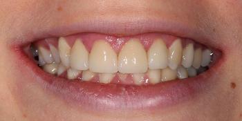 Коррекция положения и формы десневого края в сочетании с винирами E-MAX фото после лечения