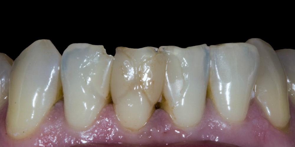 Результат прямой композитной реставрации зубов материалом Filtek Ultimate