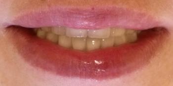 Результат имплантации Osstem и протезирования на верхней челюсти фото после лечения