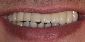 Восстановление функции и эстетики верхней челюсти ортопедической конструкции на имплантах фото после лечения