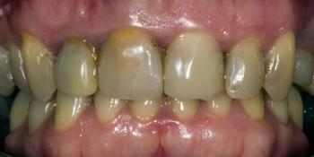Результат прямой композитной реставрации зубов материалом Filtek Ultimate фото до лечения