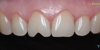 Востановление скола зуба, центрального резца фото до лечения