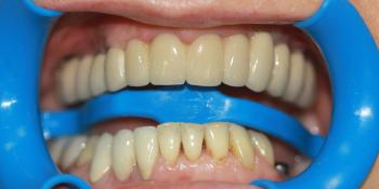 Восстановление жевательной функции верхней челюсти фото после лечения