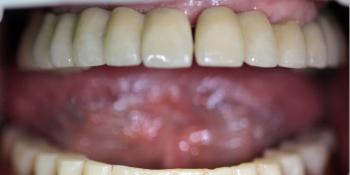Восстановление жевательной функции при полном отсутствии зубов на верхней и нижней челюсти фото после лечения