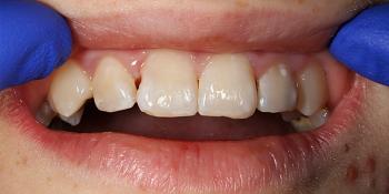 Лечение кариеса и реставрация передних зубов пломбировочным материалом фото до лечения