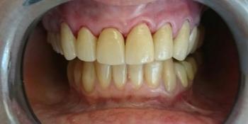 Эстетическая реабилитация фронтальной группы зубов винирами IPS e.max фото после лечения