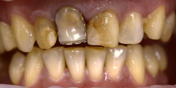 Лечение десен и эстетическая реставрация передних зубов фото до лечения