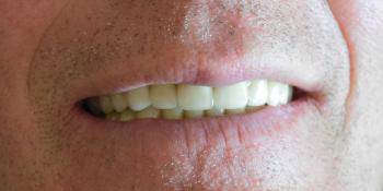 Замена металлических коронок на металлокерамические коронки фото после лечения