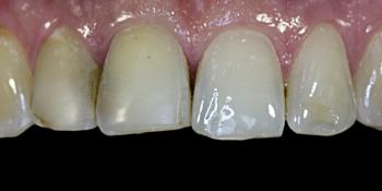 Жалобы на неудовлетворительную эстетику передних зубов фото до лечения