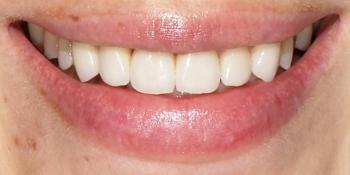 Эстетическая реставрация передних зубов с помощью виниров E.MAX фото после лечения