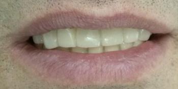 Имплантация зубов системой Osstem на верхнюю челюсть + протезирование фото после лечения