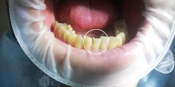 Восстановление зуба с помощью композитного материала фото до лечения