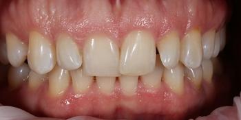Эстетическая реставрация зубов винирами E.MAX фото до лечения