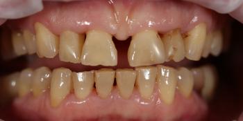 Устранение щели между передними зубами с помощью виниров E-MAX фото до лечения