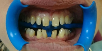 Полная реконструкции фронтальной группы зубов верхней и нижней челюсти безметалловыми конструкциями фото до лечения