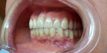 Протезирование зубов верхней челюсти при потере большого количества зубов фото после лечения
