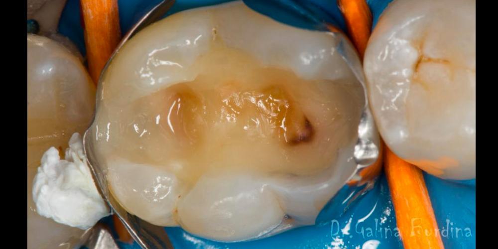 Лечение вторичного кариеса под пломбой, реставрация зуба 46, МОД