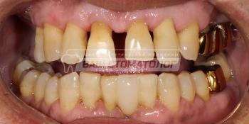 Шинирование подвижных зубов верхней челюсти фото до лечения