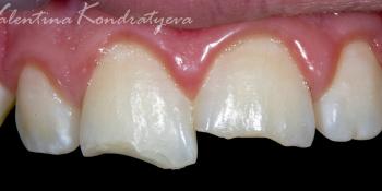 Реставрация дефекта передних зубов прямым способом фото до лечения