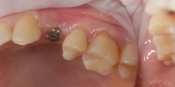 Операция закрытого синуслифтинга, установка единичной металлокерамической коронки на имплантате фото до лечения
