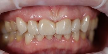 Устранение щели между передними зубами с помощью виниров E-MAX фото после лечения