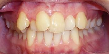 Исправление прикуса зубов с помощью брекетов Damon Clear фото до лечения
