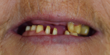 Бюгельное протезирование верхней и нижней челюсти фото до лечения