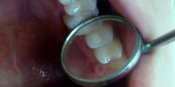 Лечение глубокого кариеса зубов 24,25, реставрация материалом FiltekZ550 фото после лечения