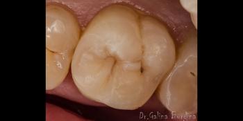 Эстетическая реставрация жевательного зуба 2.6 фото после лечения