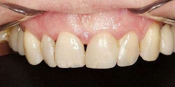 Прямая реставрация 4-х центральных резцов верхней челюсти фото до лечения
