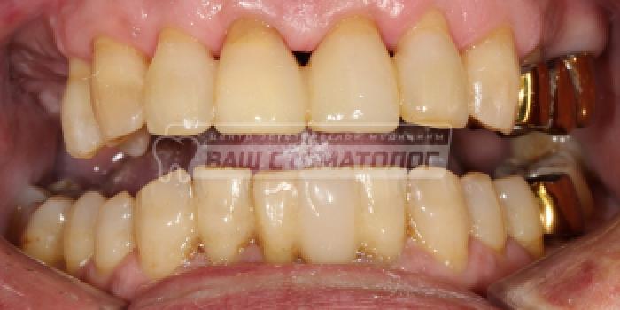 Шинирование подвижных зубов верхней челюсти фото после лечения