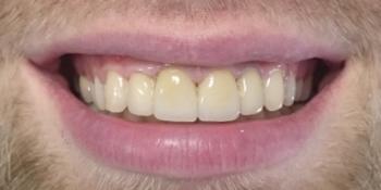 Установлено 4 коронки из пресованной керамики E-max фото после лечения