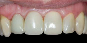 Результат прямой композитной реставрации зубов материалом Filtek Ultimate фото после лечения