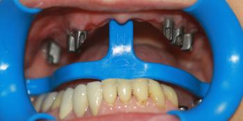 Восстановление жевательной функции верхней челюсти фото до лечения