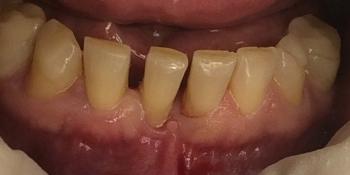 Результат лечения подвижности передних нижних резцов фото до лечения