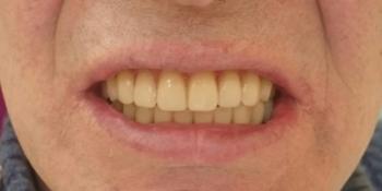 2 полных съёмных пластиночных протеза на верхнюю и нижнюю челюсти фото после лечения