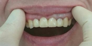 Композитная реставрация 6 фронтальных зубов верхней челюсти фото после лечения
