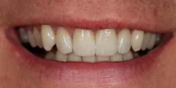 Сделать цвет зубов равномерным и естественным, убрать сколы и выровнять несимметричные края зубов фото после лечения