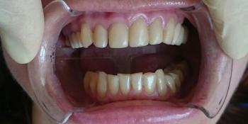 Эстетическая реабилитация фронтальной группы зубов винирами IPS e.max фото до лечения